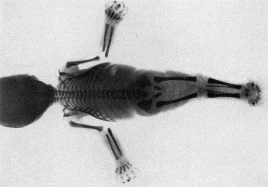 Are Mermaid Myths Inspired by a Rare Medical Condition?