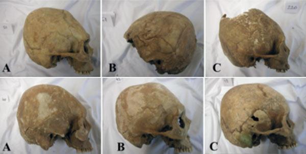 Elongated skulls in the Carpathian Basin
