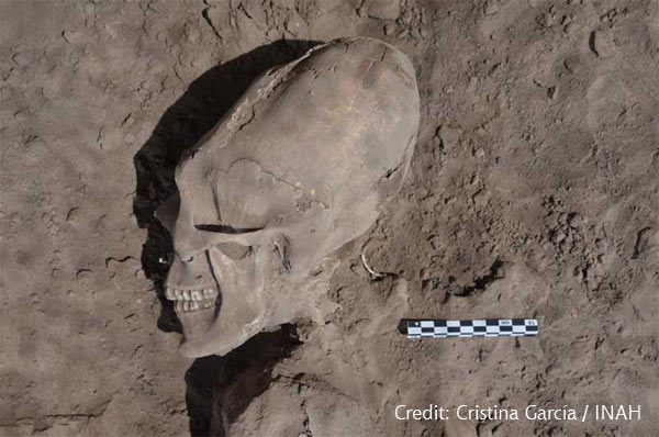 Mexico's elongated Skulls