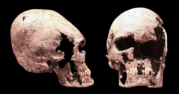 Elongated skulls
