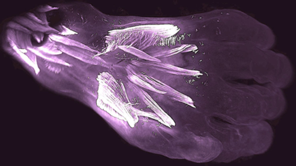 Muscles in the back of a 10 week old human embryo's hand called dorsometacarpales (the two smallest horizontal muscles highlighted at center) will be lost or fuse with other muscles during development. Source: Diogo, Siomava, Gitton.