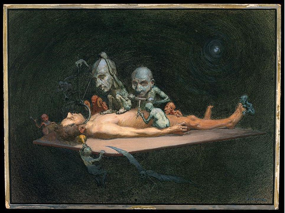 An unconscious naked man lying on a table being attacked by little demons armed with surgical instruments