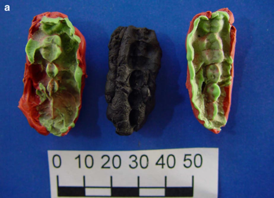 One of the chewing gums containing the oldest Scandinavian DNA from Huseby Klev with two plastelina casts for each side.