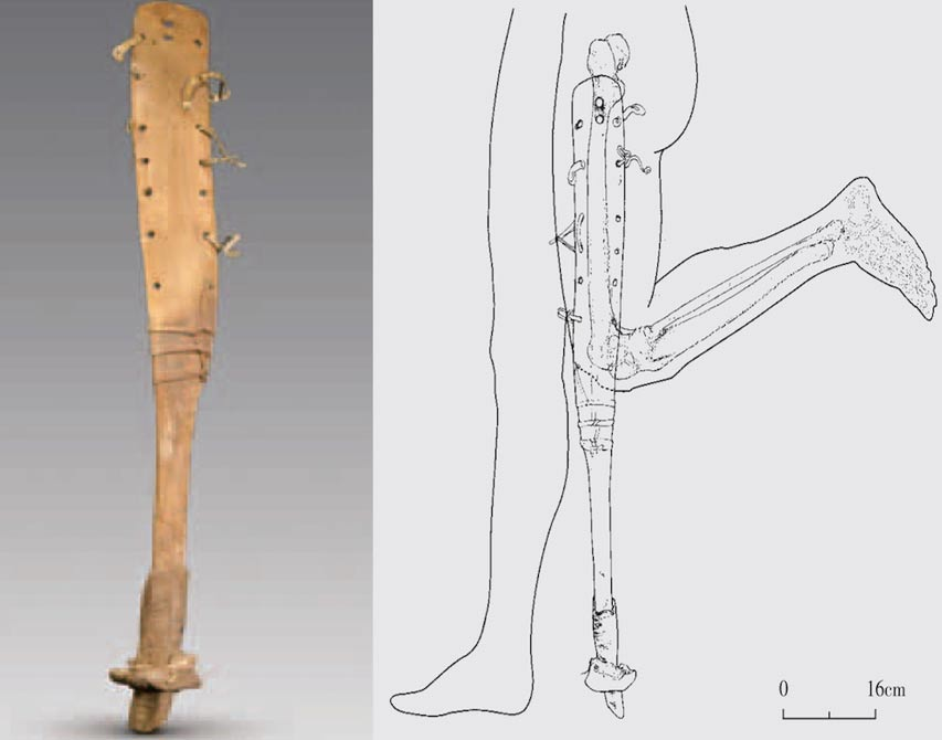 The prosthesis of the man with a fused knee, femur and tibia helped him walked, which would have been difficult for him otherwise.