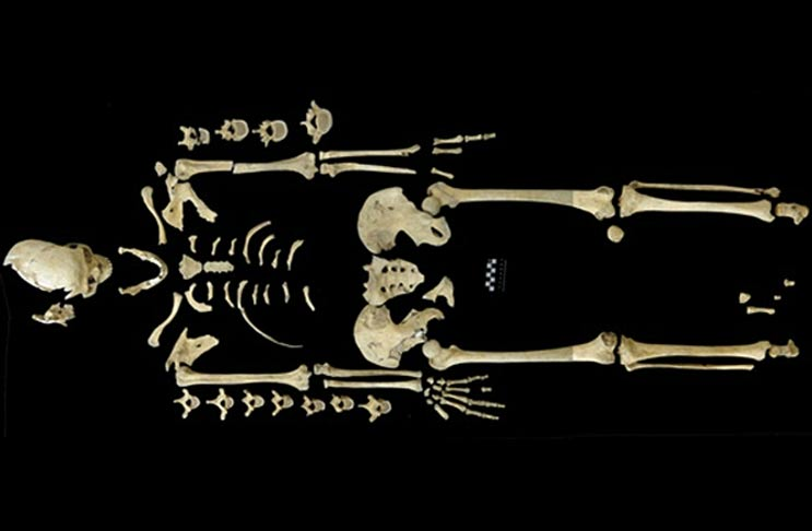 7,000-year-old skeleton of woman may have been a victim of leukemia, making it the oldest case found.