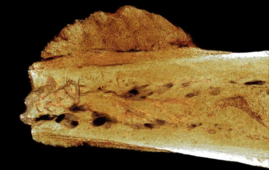 A view of the fossilized, 1.7-million-year-old hominin toe bone upon which the cancerous tumor was diagnosed.