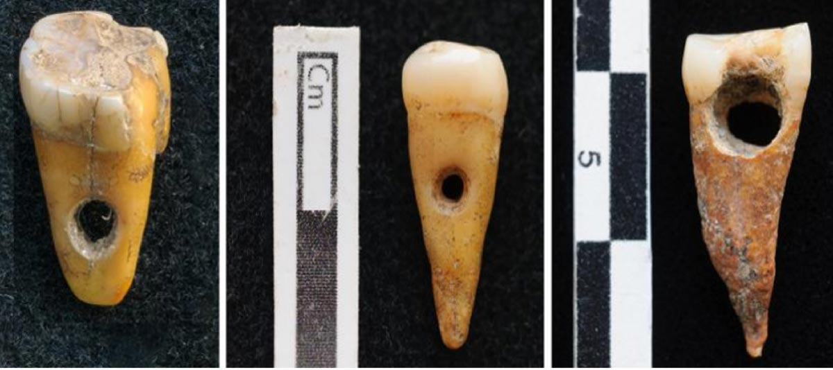 Evidence of human tooth jewelry has been found at Çatalhöyük, Turkey. Source: SCOTT HADDOW / UNIVERSITY OF COPENHAGEN