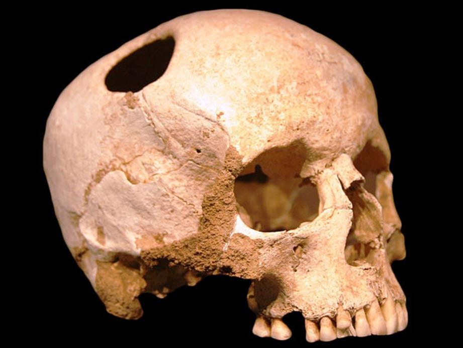 Un cráneo trepannated del Neolítico
