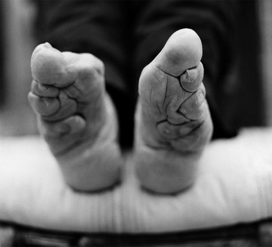 Photographer Captures Last Traces Of The Ancient Tradition Of Foot Binding Ancient Origins