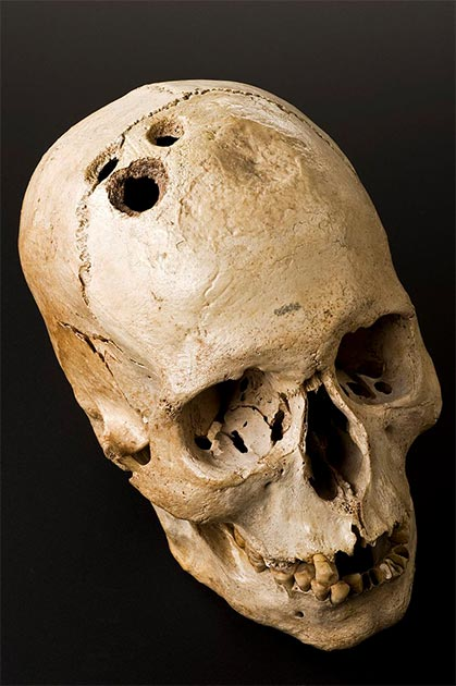 Although this skull shows four separate holes made by the ancient surgical process of trephination, they had clearly begun to heal. This suggests that although highly dangerous, the procedure was by no means fatal. This skull was excavated at a site near Jericho in 1958. (Wellcome Images / CC BY 4.0)