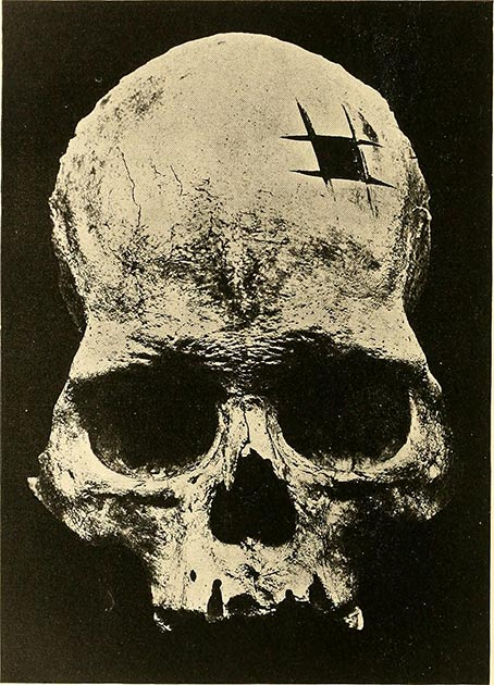 The original skull that Ephraim George Squier was shown with evidence of trephination. (Internet Archive Book Images / Public domain)