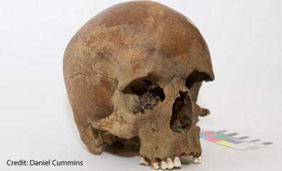 European Skull in Australia
