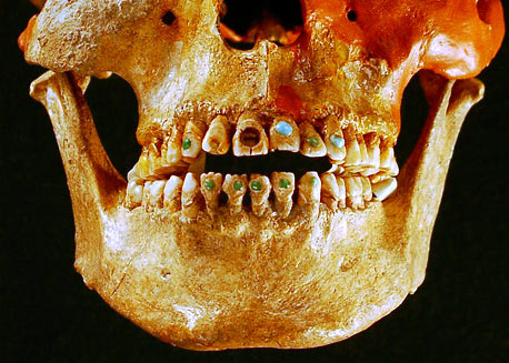 Mayan 'bling' on a male skull found in Chiapas, Mexico