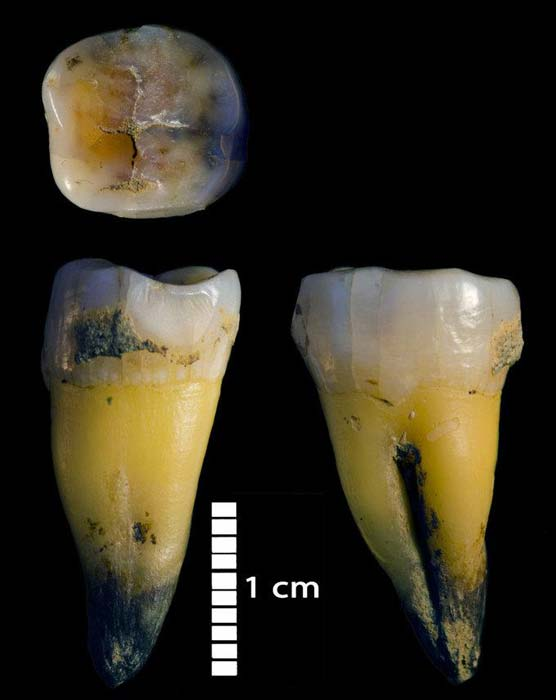 Image of second lower molar of a modern human discovered at the Bacho Kiro Cave in Bulgaria. DNA analysis has concluded he had a Neandertal ancestor less than six generations before he lived. (MPI-EVA - Rosen Spasov / Max Plank Institute)