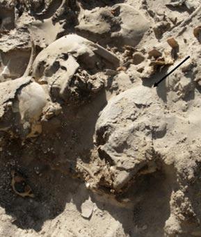 La momia con un cráneo que contiene huellas cerebrales