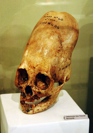 Elongated Human Skulls of Peru: Possible Evidence of a Lost Human Species? Museum-skull