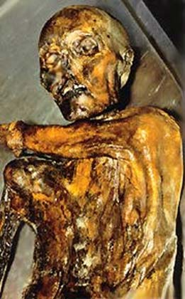 Ötzi the Iceman, now housed at the South Tyrol Museum of Archaeology in Bolzano, Italy