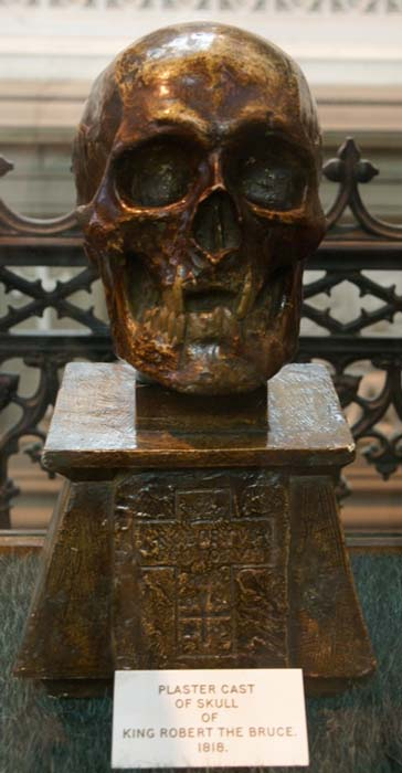 The plaster cast of Robert the Bruce's skull