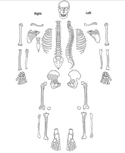 The skeletal inventory of the remains discovered dating from Bronze Age China. The shaded areas show the present skeletal remains found at the site. (Jenna Dittmar / Science Direct)