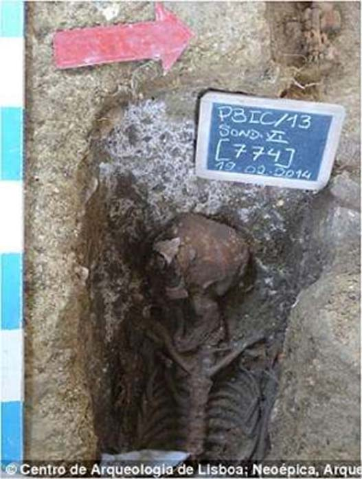 The skeleton of the woman found with the tumor.