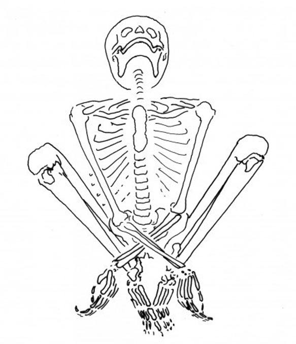This skeleton was that of a young woman, who was pregnant at the time of her death. She was found in a sitting position, with the hands crossed between her legs. The position of the body suggests that the hands and feet may have been bound.
