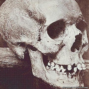The skull of Lilias Adie