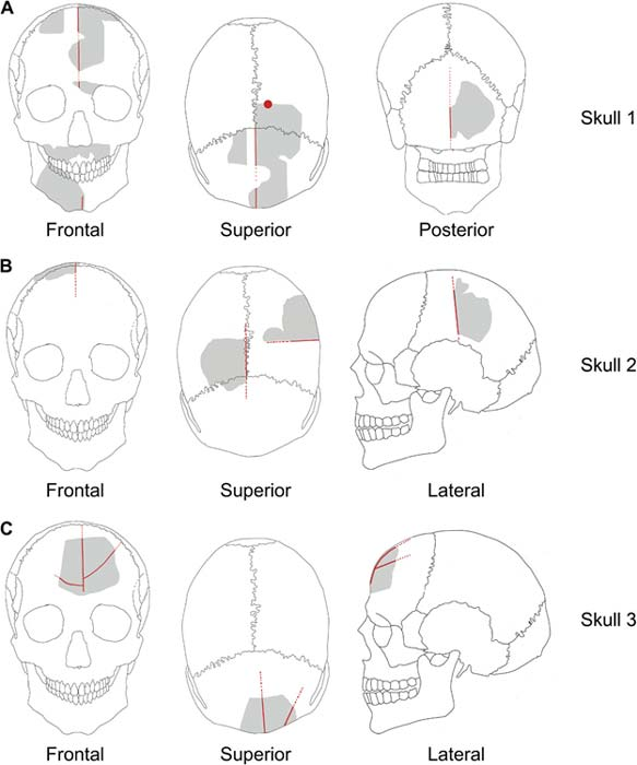 The skulls were in fragments. The red lines show incisions and modifications.