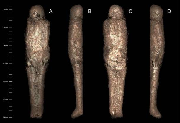 3D-rendered CT images of the mummified person, showing the mud carapace which surrounded the body – demonstrating a previously unknown mortuary practice. (Sowada et al. Courtesy Chau Chak Wing Museum and Macquarie Medical Imaging/ PLOS ONE/CC BY 4.0)