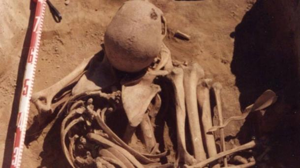 4,500 year old bones of Siberian man reveal he died of cancer. Researchers have found what may be the oldest case of human cancer in the world.