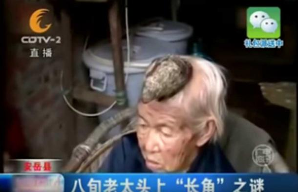 87-year-old Liang Xiuzhen from Sichuan, China had a five inch HORN growing out of her head. (Youtube Screenshot)