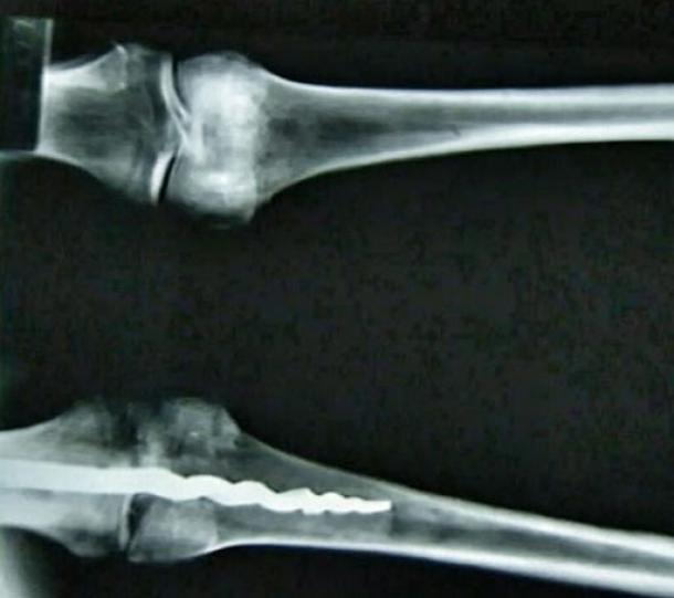 X-ray showing the 9-inch drill in the knee of Usermontu.