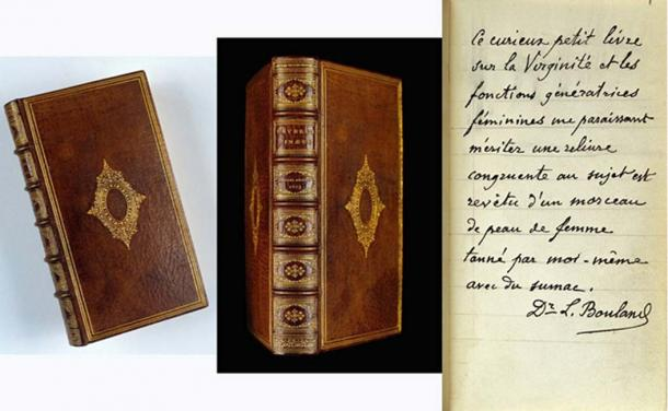 A book in the Wellcome Library bound in human skin. (Wellcome Library / CC BY-SA 4.0)