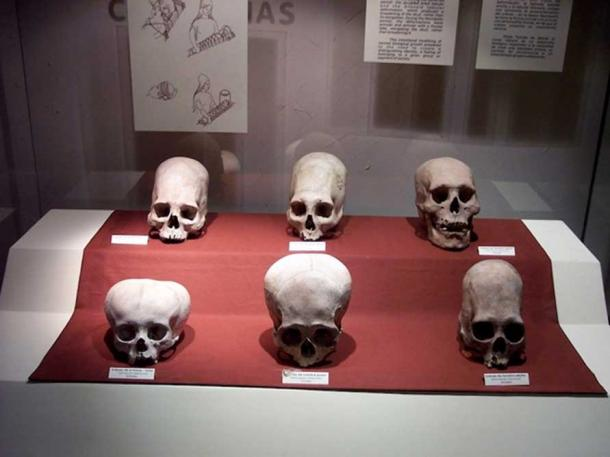 A case of skulls from the Andean Paracas culture, as seen in the Museo Nacional de Arqueología, Antropología e Historia del Perú in Lima. They illustrate head flattening practiced in this culture's elite.