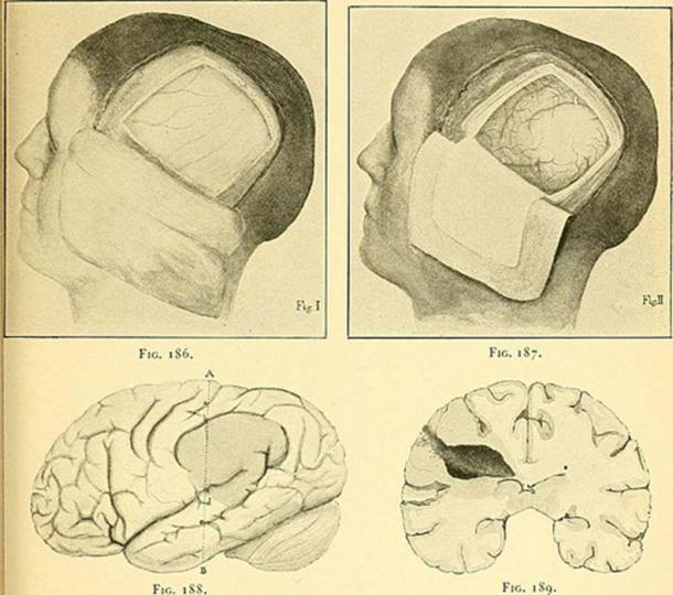 A craniotomy removes some of the skull to allow access to the brain, or to give the brain space to swell. (Internet Archive Book Images)