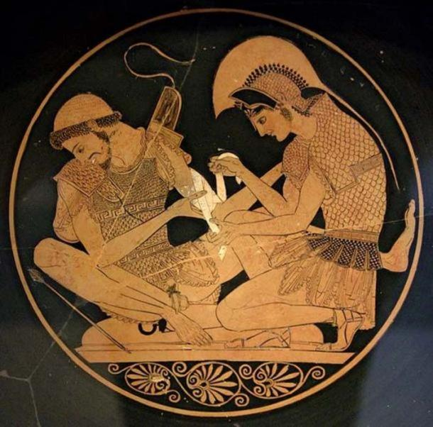 Achilles tending Patroclus wounded by an arrow, identified by inscriptions on the upper part of the vase. Tondo of an Attic red-figure kylix, circa 500 BC. From Vulci. (Public Domain)