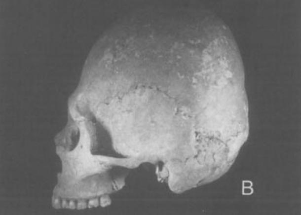 Adena like crania from the Berryhill Cemetery, Ohio.