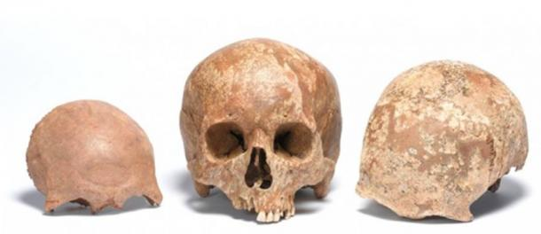 Adult skull of the Roman period, found at Liverpool Street