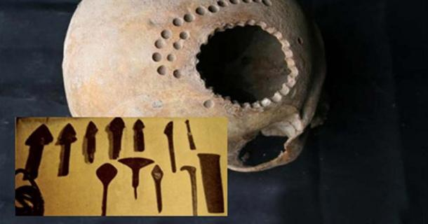 """Main: An ancient skull found in Peru with evidence of surgical intervention. Credit: Danielle Kurin. Inset: 4,000-year-old """"scalpels"""" (Xinhua 