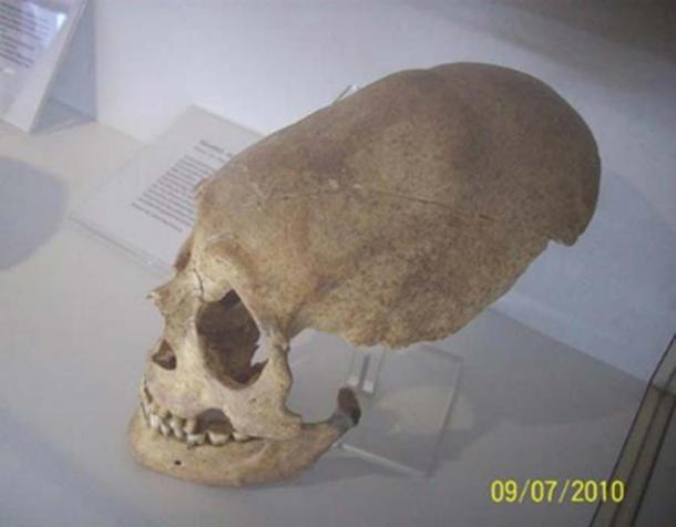 An elongated skull found in Germany. (soul-guidance.com)