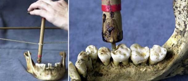 An experimental reconstruction of a bow and flint-tipped drill used to bore through molar teeth found at a Neolithic graveyard in Mehrgarh, Pakistan. (University of Poitiers)