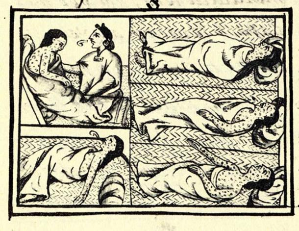 An illustrated panel appearing on fol.54 of Book XII of the en:Florentine Codex, the 16th-century compendium of materials and information on Aztec and Nahua history collected by Fray Bernardino de Sahagún. The drawing shows Nahuas infected with smallpox disease. (Public Domain)