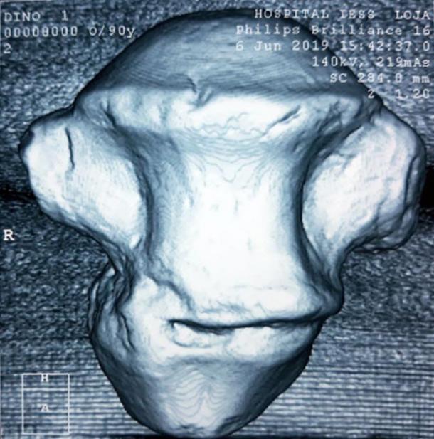 Analysis of one of the vertebrae. (El Universo)