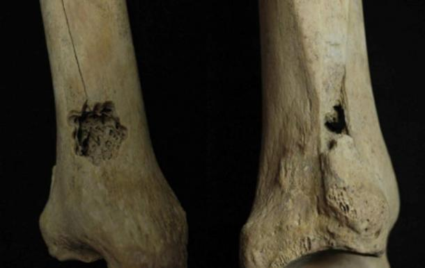 First Ever Evidence for Ancient Bone Surgery found in Peru - Holes Drilled in Legs