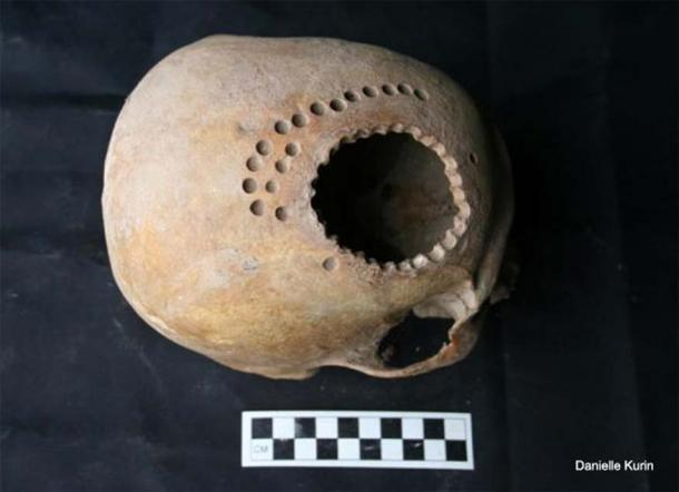 Ancient cranial surgery in Peru