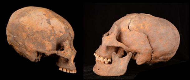 Artificially remodeled human skulls unearthed at a site in northeastern China include one of a man from around 12,000 years ago (left in this composite image) and another of a woman from about 5,000 years ago (right). (Zhang et al., American Journal of Physical Anthropology, 2019)
