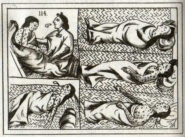 16th century Aztec drawing of smallpox victims