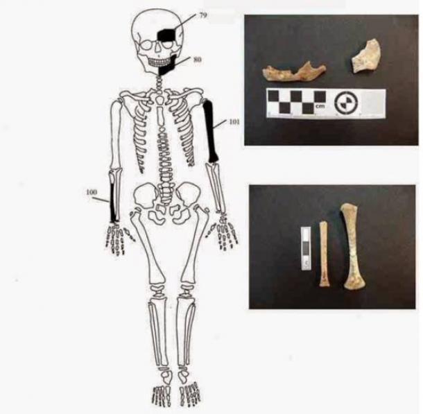 Bones found belonging to newborn infant.