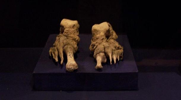 Bones from the feet of a leper, clearly deformed by the illness. Denmark. Representational image.