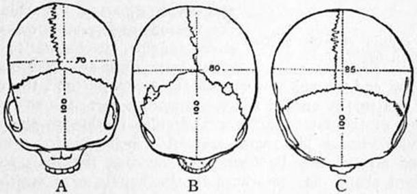 Brachycephalic heads are wide and flat, represented here by skull C