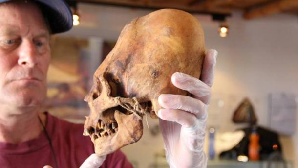 Brien Foerster with an elongated skull